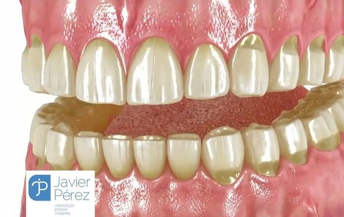 Dentista Cádiz Dr. Javier Pérez
