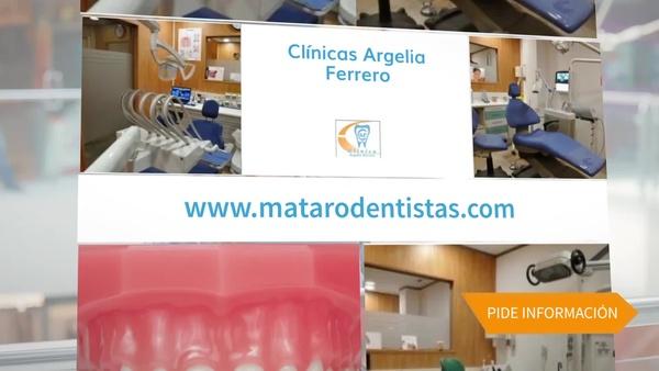 Implantes dentales en Mataró, mejorará la salud y la belleza de su boca en Clínica Argelia Ferrero