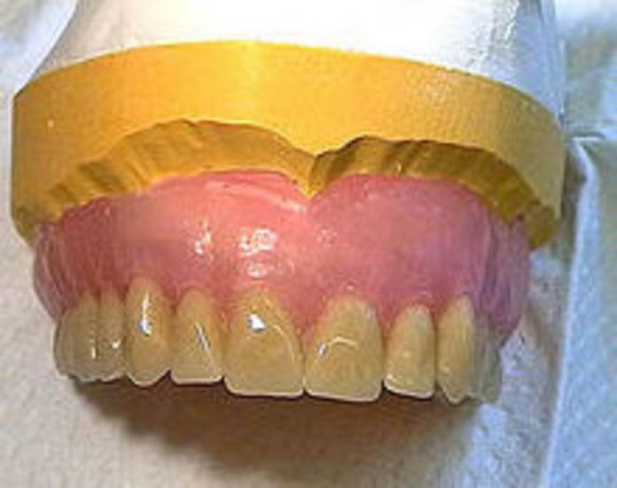 Dentaduras completas: Servicios de Atenas Laboratorio Dental