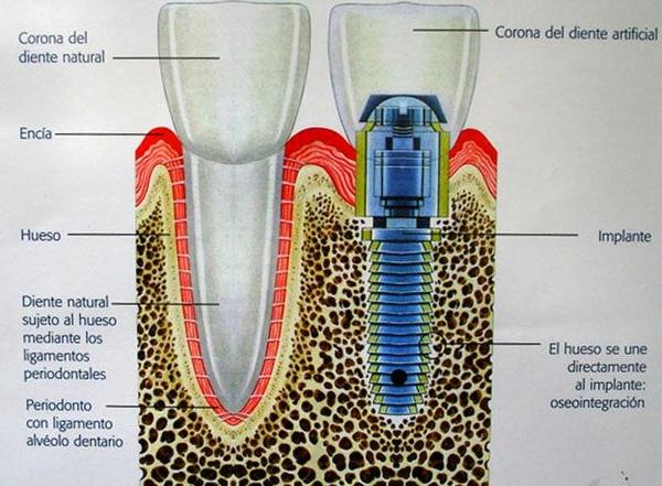 Implantes: Especialidades  de Clínica Médico Dental Albelu