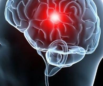 Fisioterapia neurológica ( ictus ) en Alcorcón
