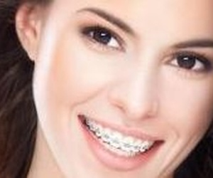 Ortodoncia Metálica