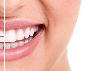 Galería de Clínica dental en Vilanova i la Geltrú | Clínica Dental Sant Jordi
