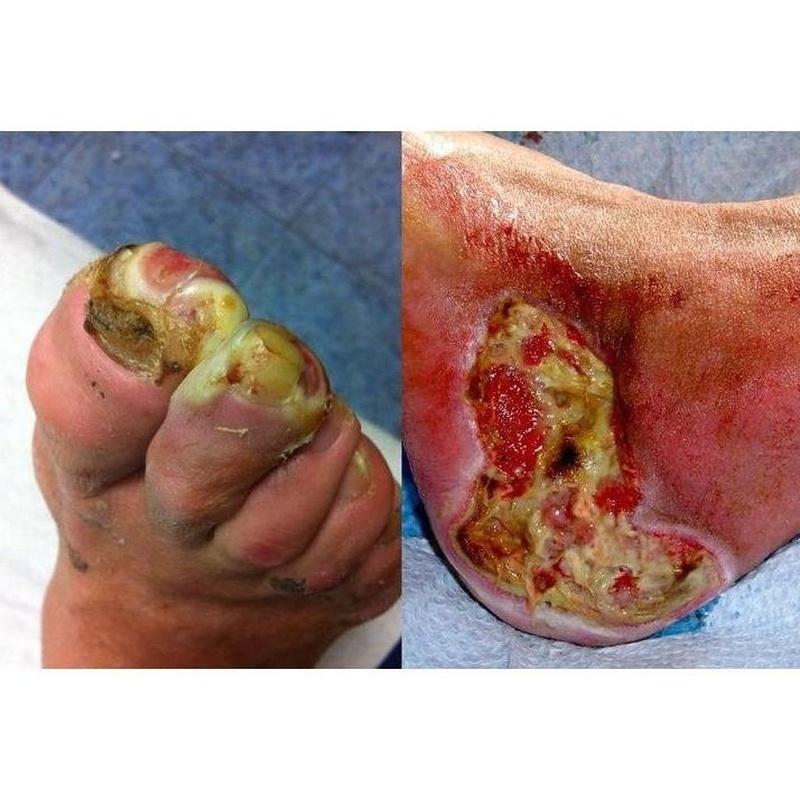 Circulación arterial y pie diabético: Productos y servicios de Consulta Barreiro-Vascular (Dr. A. Barreiro Mouro)
