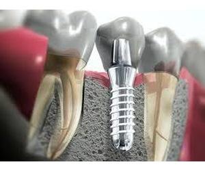 Todos los productos y servicios de Clínicas dentales: Clínica Dental Santiago G. Fdez. - Nespral