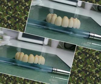 Prótesis: Nuestros servicios de Clínica Dental Balbarán