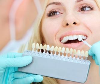 Blanqueamientos: Tratamientos dentales de Dr. Joaquín Artigas