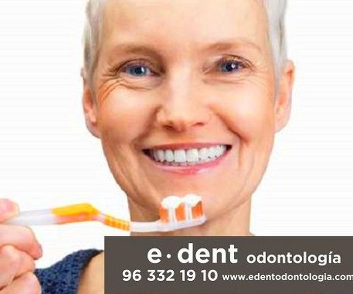 Implantes dentales Valencia