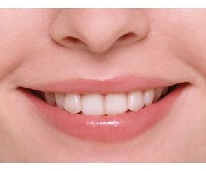 Tratamientos dentales: Clínica Dental Casimiro Sinde Pereiro