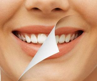 Estètica / blanquejament dental