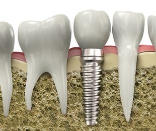 ¿Has oído hablar de los implantes de carga inmediata?