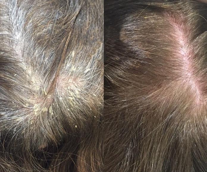Diagnósticos capilares: Alta Cosmética Natural de Sostenible Beauty Concepts
