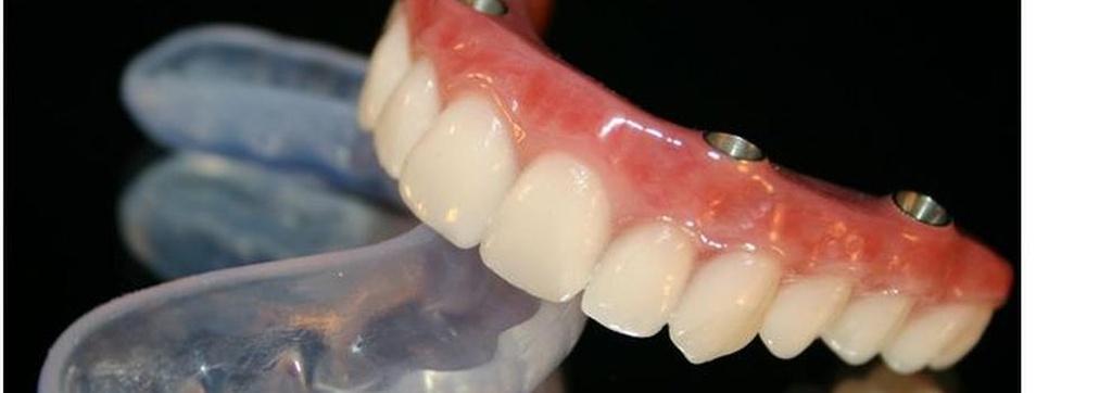 Protésicos dentales en Benidorm