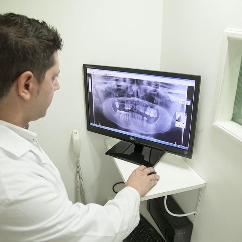 Tratamiento de la mandíbula: Tratamientos de SÁNATE