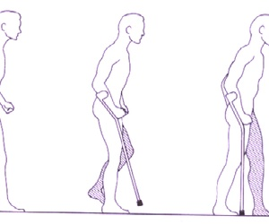 Como utilizar un Bastón