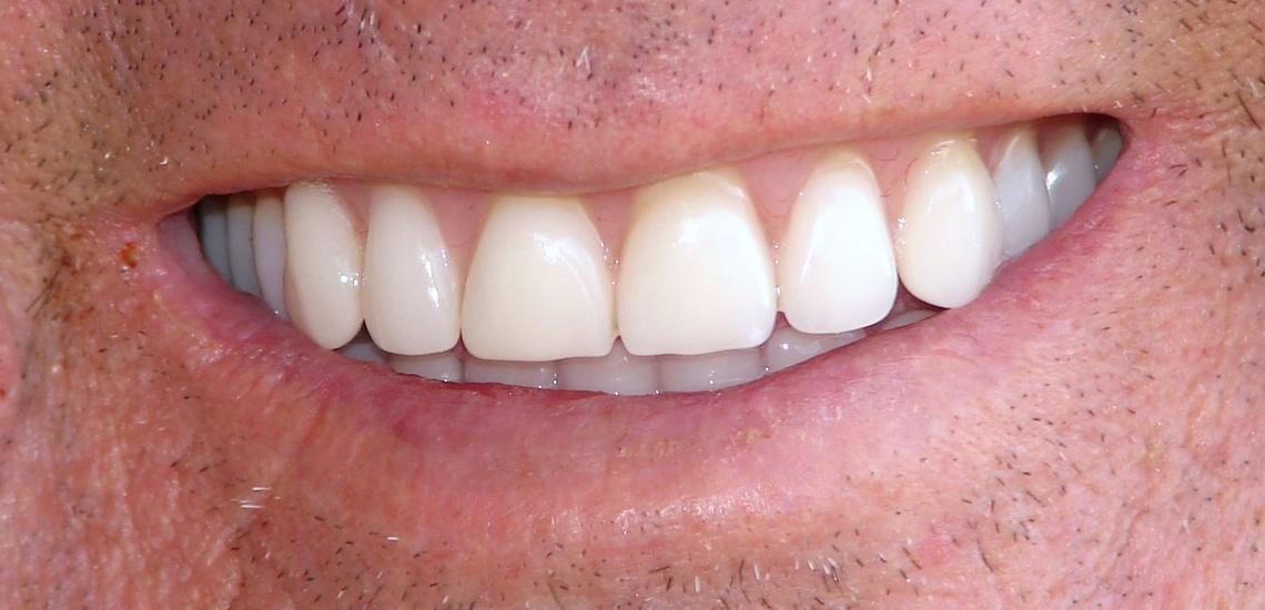 Blanqueamiento dental en Clínica dental en Miajadas