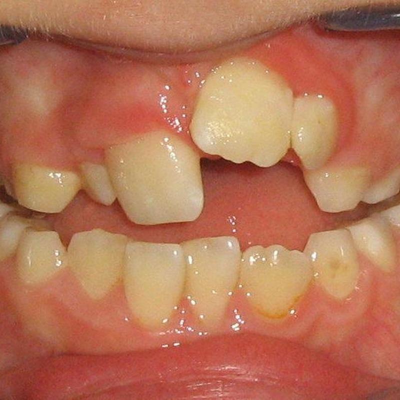 Antes de la ortodoncia