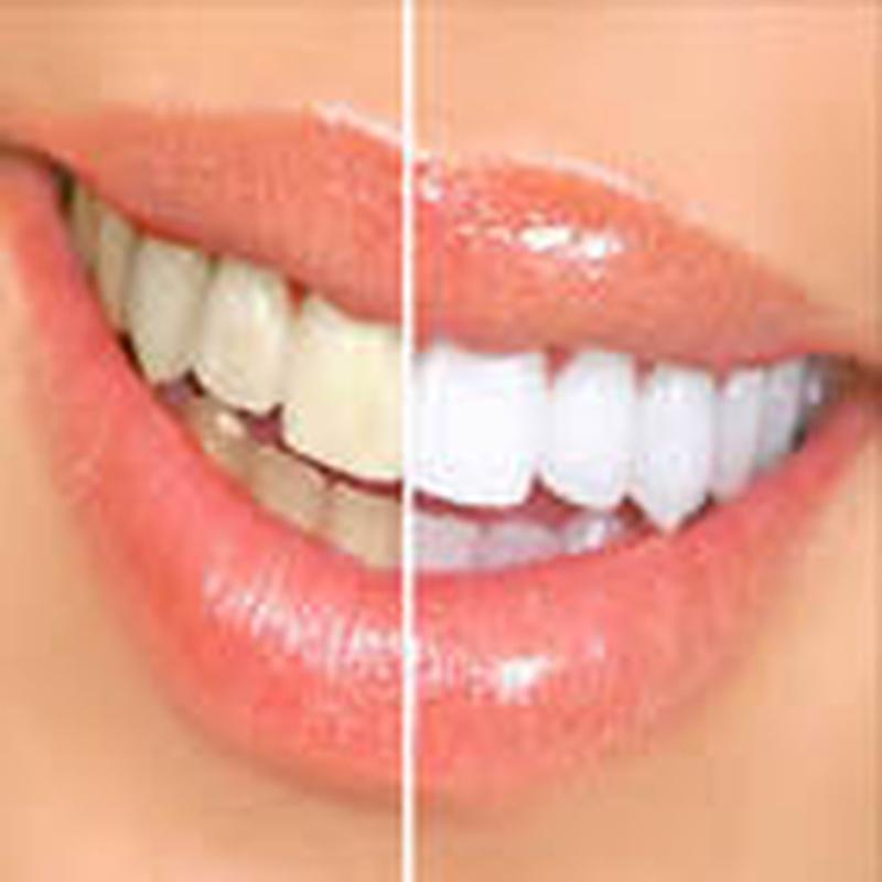 Estética dental: Servicios de Clínica Implanteoral Milladoiro