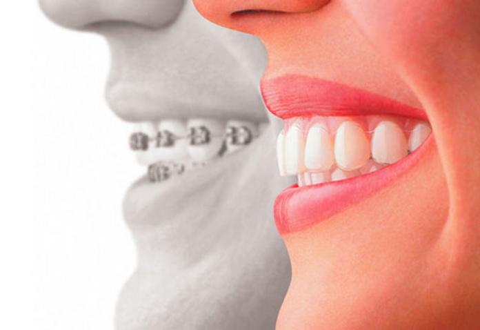 Ortodoncia estética: Tratamientos de Clínica Dental Palamadent