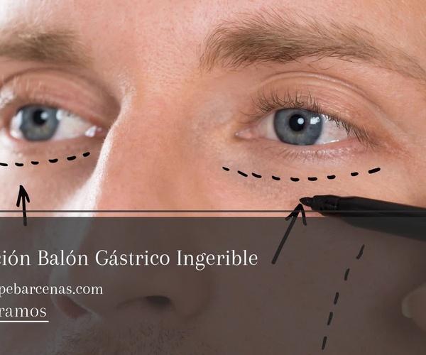 Medicina estética Sant Gervasi | Consulta Dr. Bárcenas