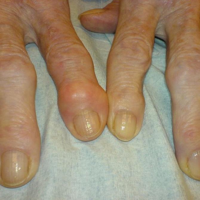Cómo luchar contra la artritis en una residencia