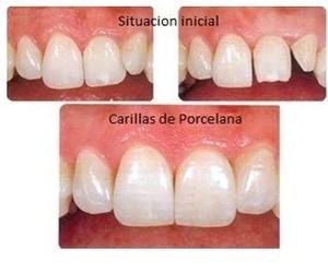 Estética dental: carillas