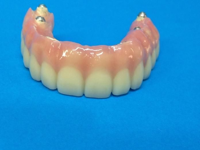 Implantología: Tratamientos de Dental Valls
