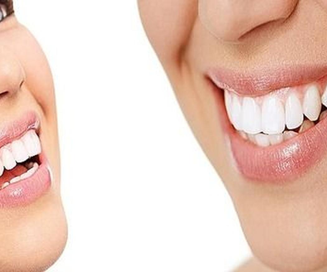 Lo que necesitas saber sobre los blanqueamientos dentales
