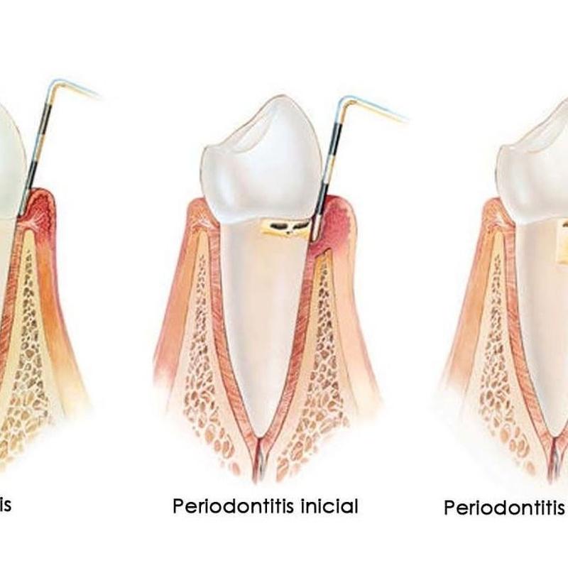Secuencia enfermedad periodontal diente anterior