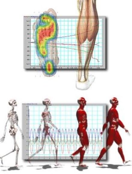 Estudio biomecánico de la marcha
