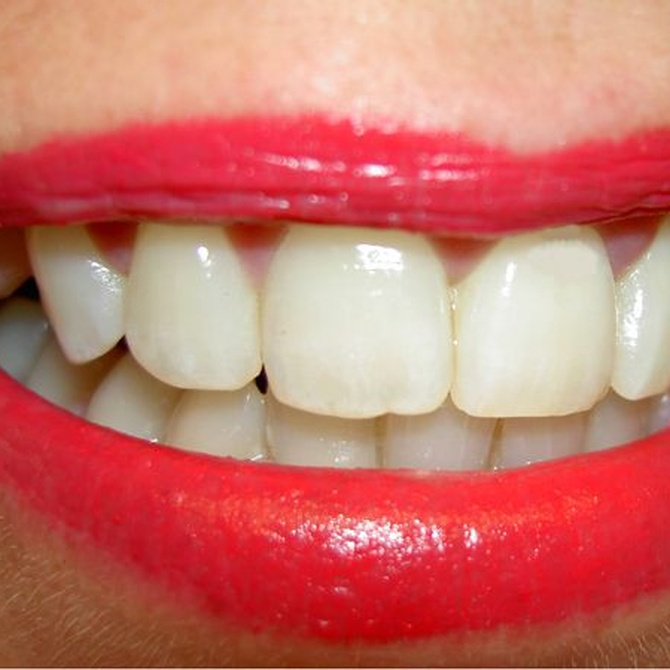 Caredent, los mejores especialistas a los que confiar tu sonrisa