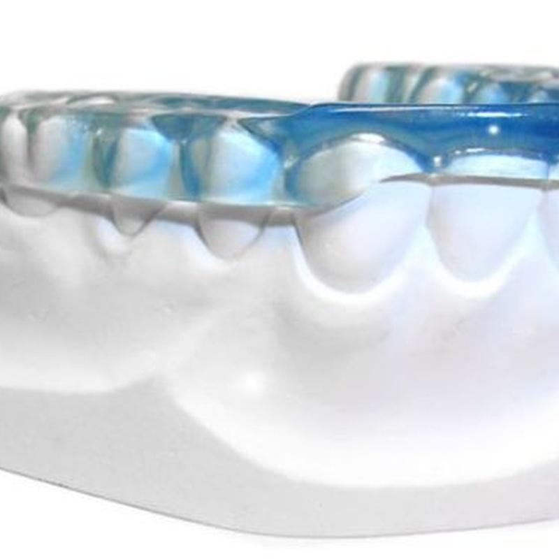 Bruxismo: Servicios de MAG Clínica Estético Dental