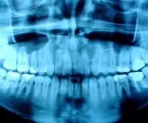Todos los productos y servicios de Dentistas: Clínica Dental Basauri