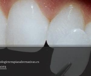 Clínicas dentales en Sant Quirze del Vallès | Centre Odontològic Sant Quirze