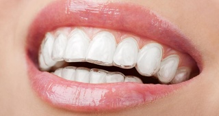 Ortodoncia invisible Invisaling®