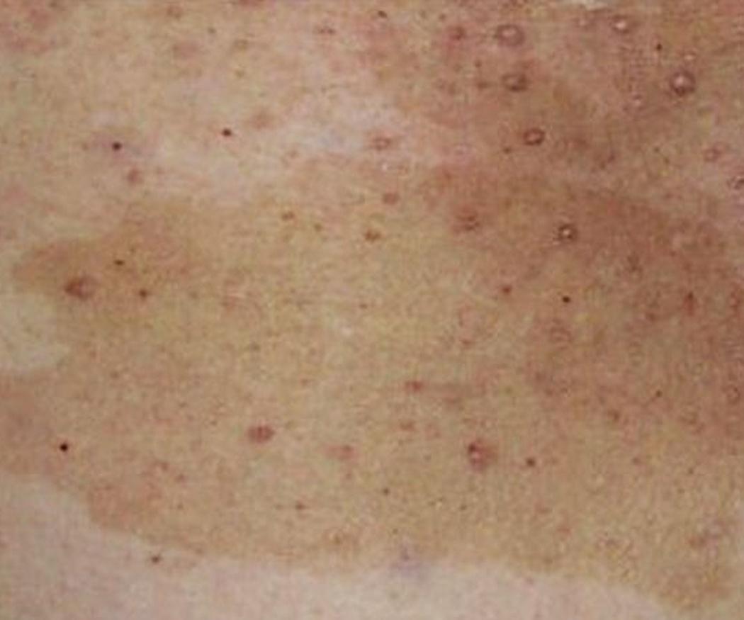 Cuidado con las manchas en la piel