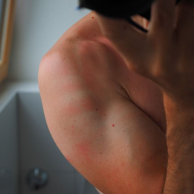 Las dos alergias más frecuentes en la piel