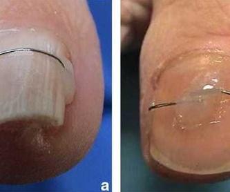 Miofascial, visceral y cicatrices: Servicios de Clínica de podología, biomecánica, fisioterapia y posturología Cristina L. Córdoba