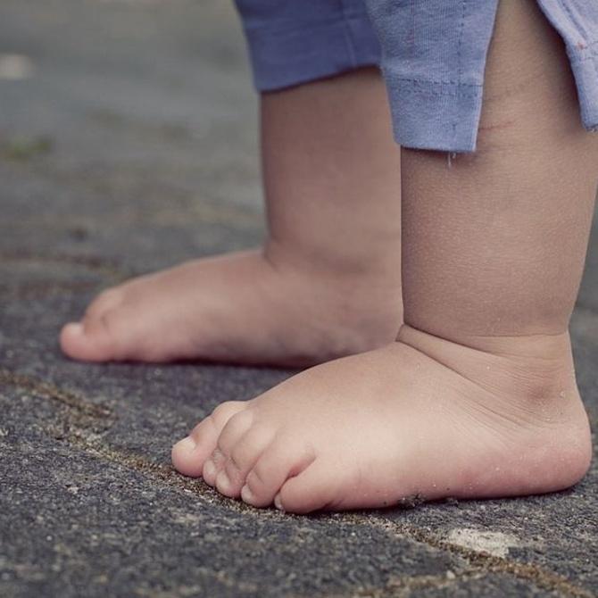El pie plano y sus tipos
