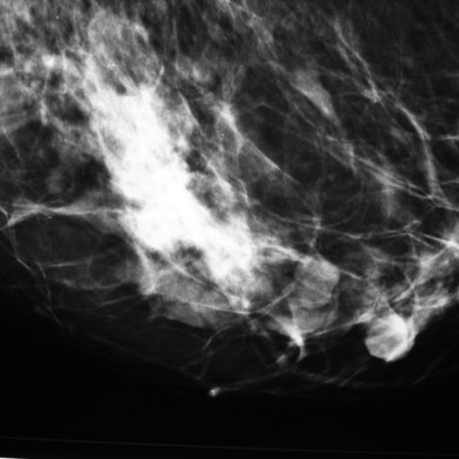 ¿Qué diferencia una mamografía de una ecografía de mamas?