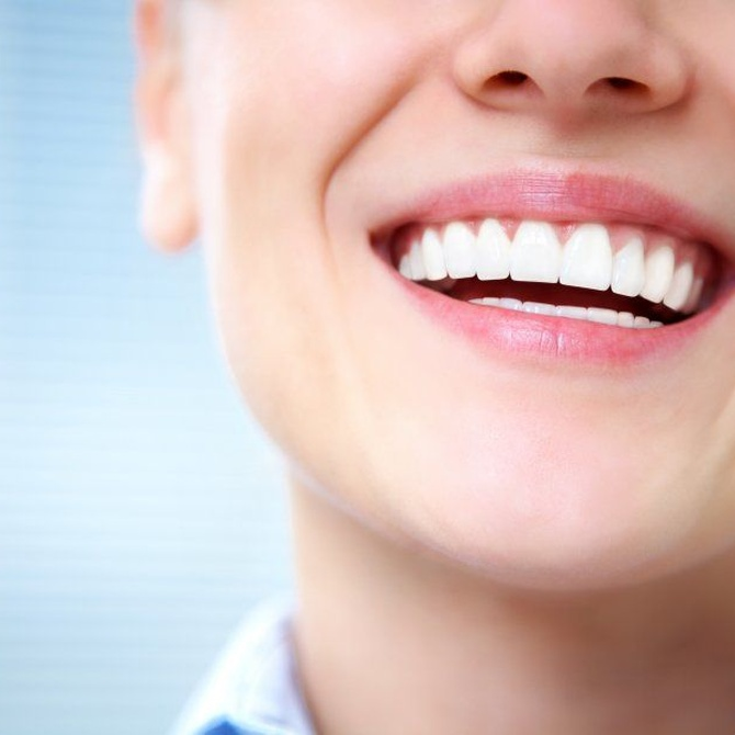 Diferencias entre blanqueamiento dental y carillas