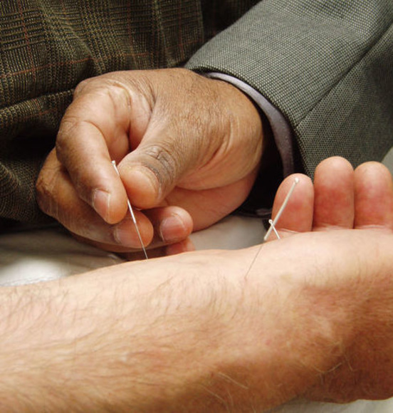 Acupuntura: Tratamientos de Centro Hipatía Terapias Naturales