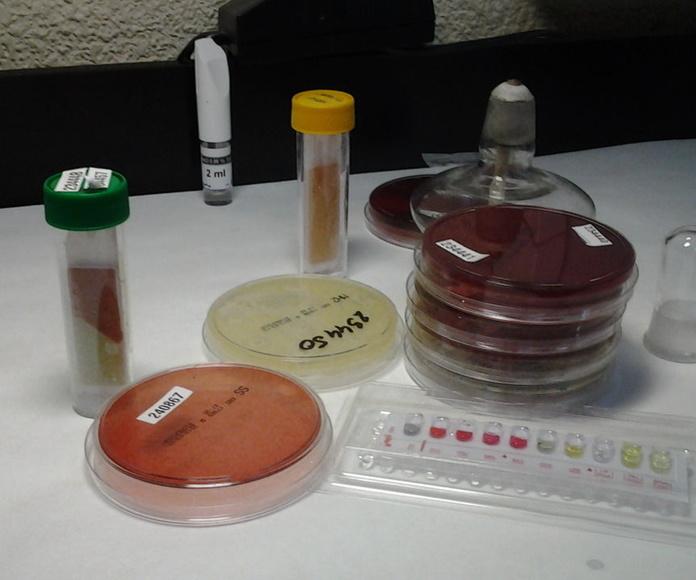 ANALISIS ETS (ENFERMEDAD TRANSMISIÓN SEXUAL): Ofrecemos de Laboratorios Ruiz-Falcó