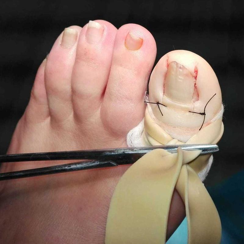 Cirugía de Uña bilateral