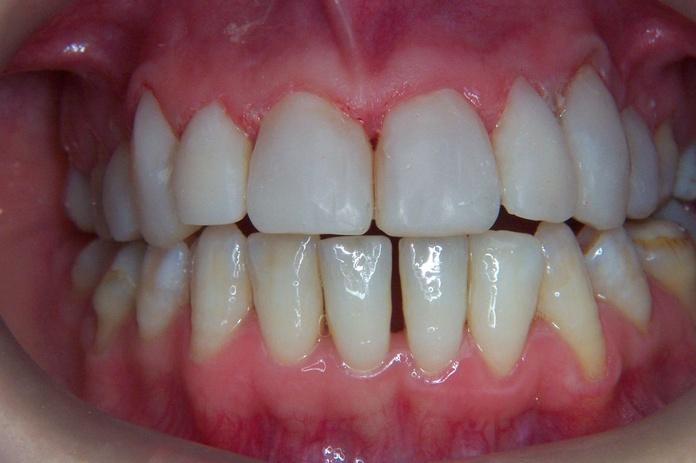 ESTETICA DENTAL, CARILLAS DIRECTAS DE COMPOSITE: Tratamientos de Clínica Dental Francisco Javier García Jerónimo