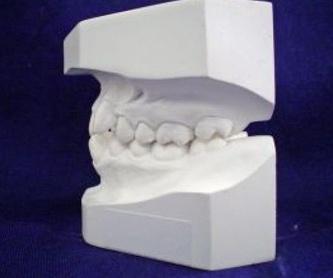 Implantes: Servicios de Vicálvaro Dental - Clínica Dental