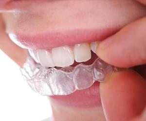 Ortodoncia invisible (Invisaling)
