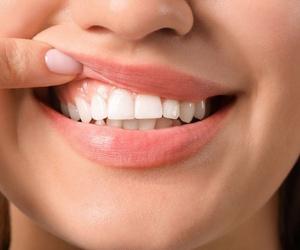Principales riesgos de las enfermedades periodontales