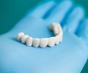 Prótesis dentales en Palencia