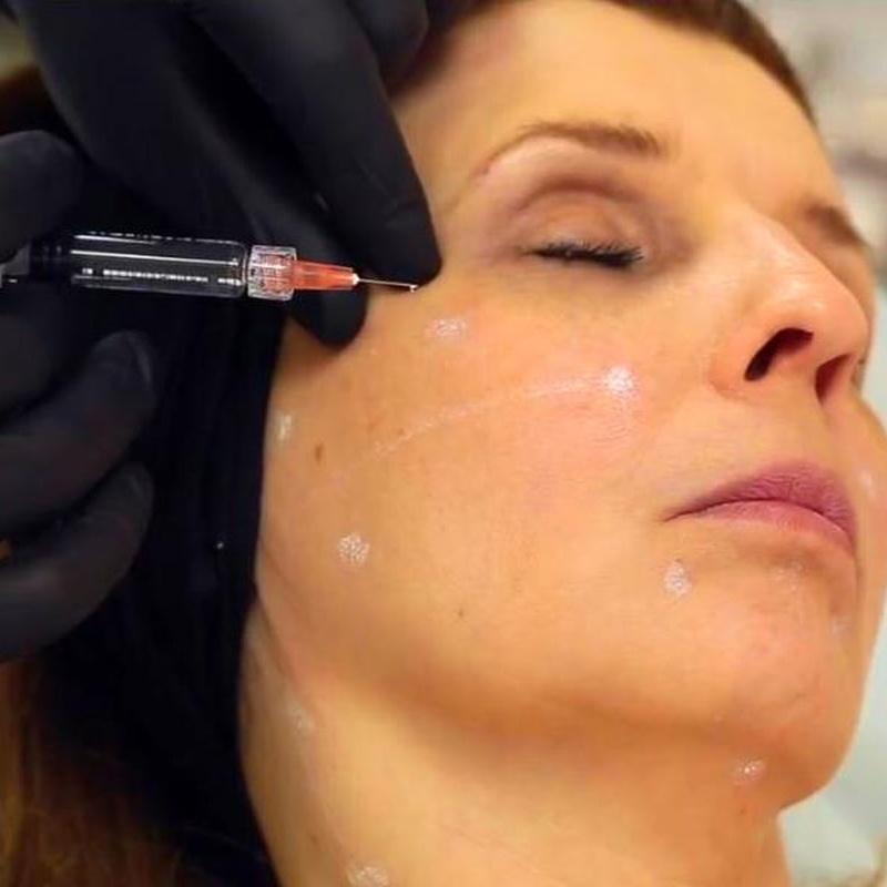 Toxina Botulínica: Servicios de Estética de Medicina & Estética Glamour